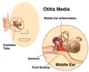 Ear Pain/Ear Infection NYC
